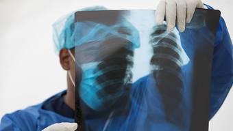 Die WHO will Tests mit dem Malaria-Medikament Hydroxychloroquin einstellen. Das Mittel habe sich für die Bekämpfung des Coronavirus als zu wenig wirksam herausgestellt. (Symbolbild)
