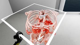 Virtual Reality: Mit SpectoVive können Ärzte in einem dreidimensionalen Raum mit dem Körperteil interagieren, der operiert werden soll.