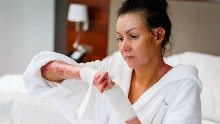Michelle Zimmermann leidet an der Hautkrankheit Epidermolysis bullosa und muss täglich viele Verbände wechseln.