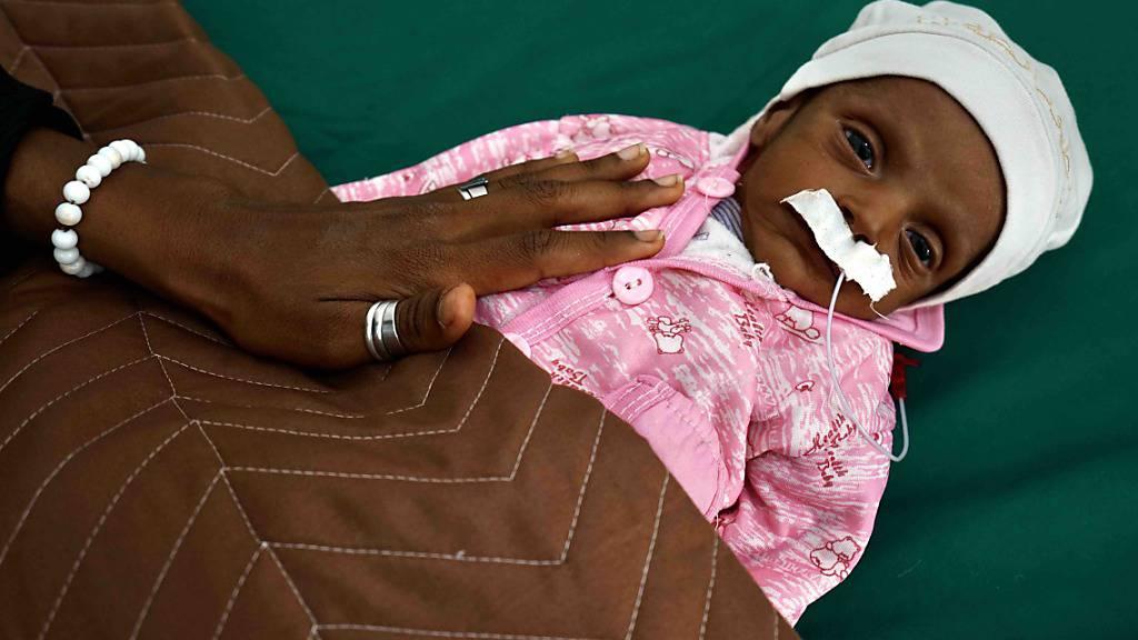 HANDOUT - Tahani ist 38 Tage alt und leidet an schwerer akuter Unterernährung. Ihre Mutter brachte sie ins Al Sadaqah Krankenhaus, weil das Kind häufig Durchfall und plötzlichen Gewichtsverlust hatte. Die Vereinten Nationen fürchten eine große Hungersnot im Bürgerkriegsland Jemen. Foto: Giles Clarke/UNOCHA/dpa - ACHTUNG: Nur zur redaktionellen Verwendung und nur mit vollständiger Nennung des vorstehenden Credits