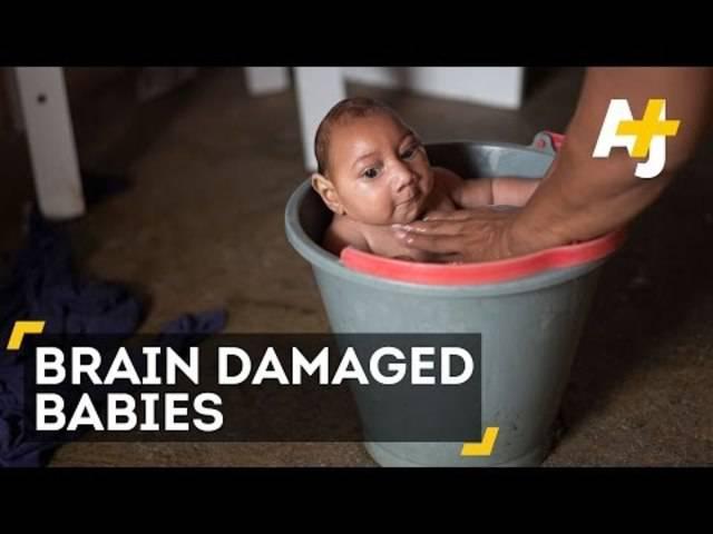 Zika-Virus: So leiden die brasilianischen Babys.