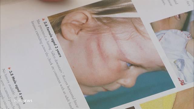 Kindesmissbrauch nimmt zu: 1730 Fälle im letzten Jahr