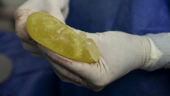 Eines der beschädigten Brustimplantate. Die französische Firma PIP hatte die Implantate statt mit Spezial-Silikon mit billigerem Industrie-Silikon befüllt. Die Kissen reissen leichter und können Entzündungen auslösen. (Archivbild)