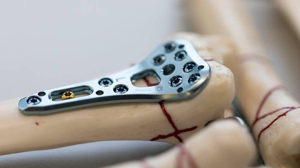 Fehlerhafte Hüftprothesen: Schweiz will strengereKontrollmechanismen