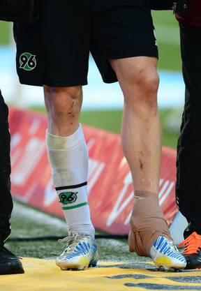 Eggimann schlug sich immer wieder mit Verletzungen rum