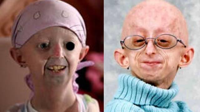 Sehen aus wie Greise, sind aber noch Kinder: Opfer der seltenen Krankheit Progerie.