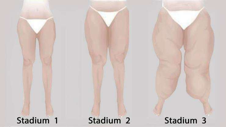 Die drei Stadien des Lipödems: Die Haut wird zunehmend uneben, die Unterhaut verdickt. Im Endstadium bilden sich grosse Fettwülste unter der Haut.