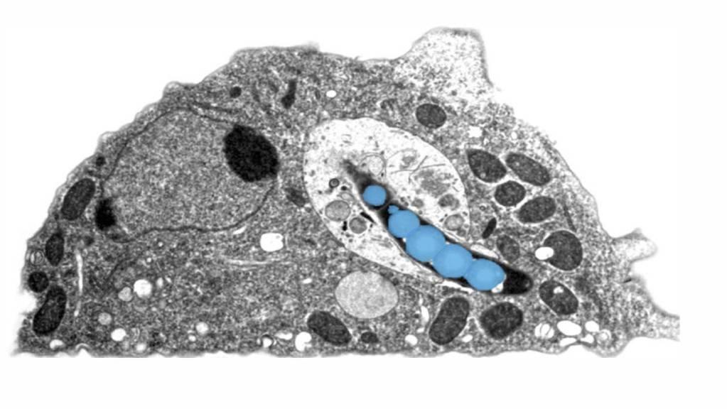Elektronenmikroskopische Aufnahme einer Amöbe, die mit dem Tuberkulose-Erreger (blau) infiziert ist.