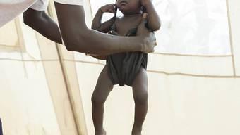 Kind in Südsudan mit Verdacht auf Unterernährung wird gewogen