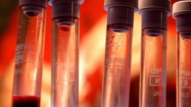 Blutproben für einen HIV-Test (Symbolbild)
