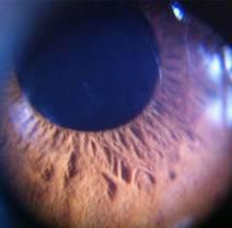 Menschliche Iris, aufgenommen mit dem Aufsteck-Mikroskop my-iCros aus der «Designerei» in Liestal.