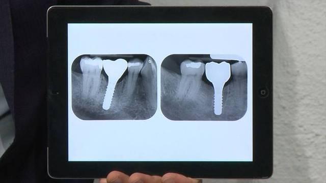 Zahnimplantate - Keramik auf dem Vormarsch?