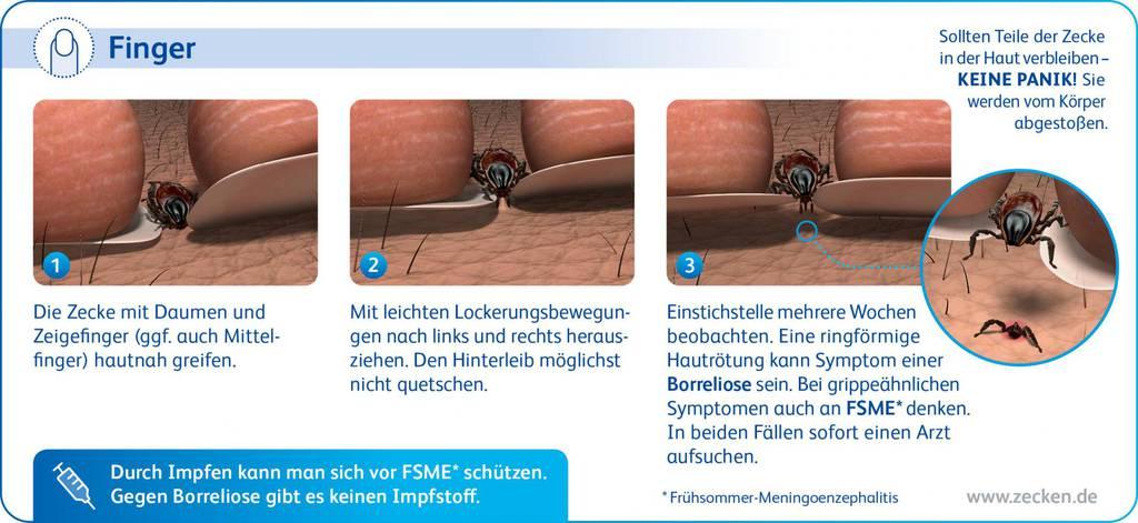 Infografik_Zeckenentfernung_Finger