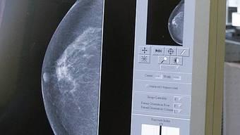 Mammographien werden neuerdings bezahlt