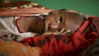 Das Risiko von Durchfall und Lungenentzündung steigt bei Unterernährung: Ein Kind aus dem Tschad (Archiv)