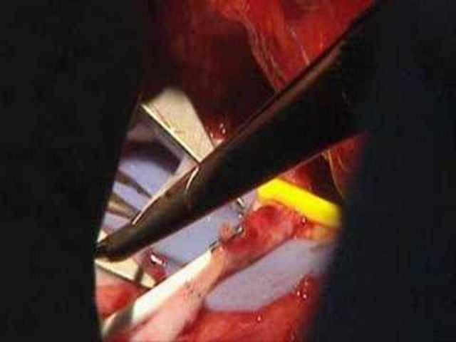 Der chirurgische Eingriff von Isabelle Dinoires Gesichtstransplantation
