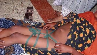 Solche Bilder will die Schweizer Politik nicht mehr sehen: Mädchen in Somalia nach Genitalverstümmelung (Symbolbild)
