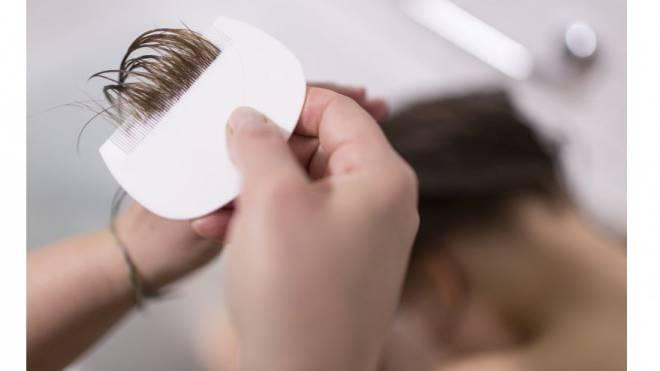 Mit einem speziellen Kamm wird das Haar auf Läuse untersucht. Foto: Keystone