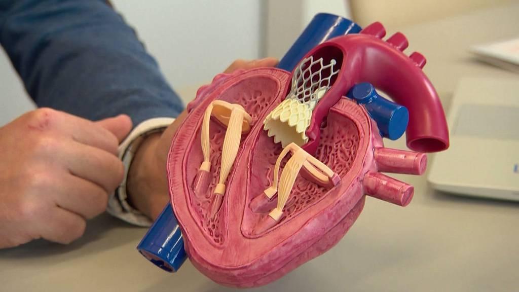 TAVI – Ein schonender Eingriff bei Herzpatienten