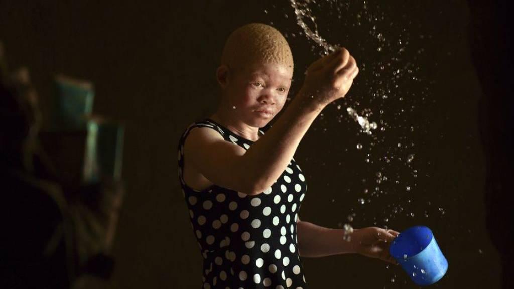 Menschen mit Albinismus in Afrika noch immer diskriminiert