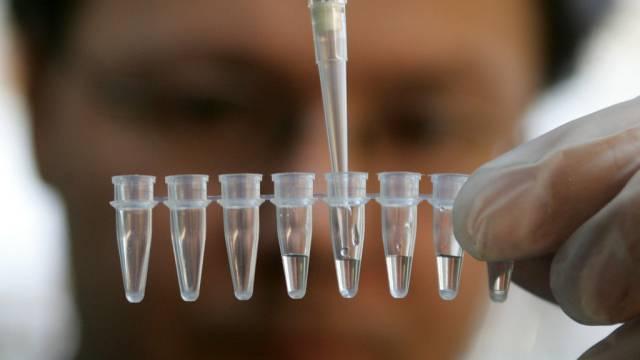 DNA-Analyse im Labor (Symbolbild)