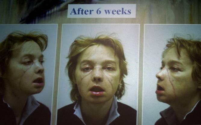 Isabelle Dinoire: Sechs Wochen nach ihrer Gesichtstransplantation.