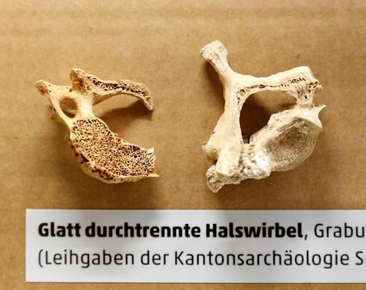 Mit dem einen der beiden Schwerter wurde möglicherweise dieser Halswirbel durchtrennt. Er gehört zu einem Skelett, das die Archäologen letzten Juni in Feldbrunnen ausgruben. (Foto: Felix Gerber)