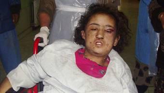 Die misshandelte Sahar Gul.