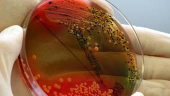Immer mehr Bakterien lassen sich nicht mehr mit Antibiotika bekämpfen. Tausende Menschen sterben jedes Jahr an den Infektionen. (Archivbild)
