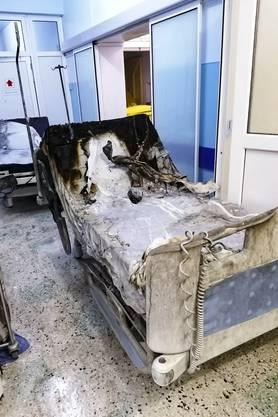 Zehn schwerkranke Covid-19-Patienten sind an schweren Verbrennungen gestorben.