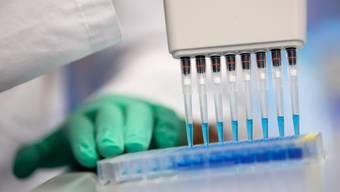 Die Schnelltests sollen in grossen Mengen eingesetzt werden können und aufwändige Laboranalysen ablösen