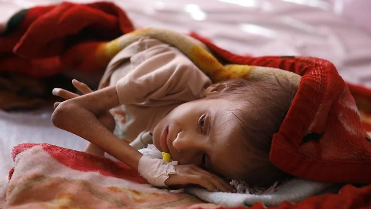 Ein unterernährtes Kind in einem Spital in der jemenitischen Hauptstadt Sanaa. (Archivbild)