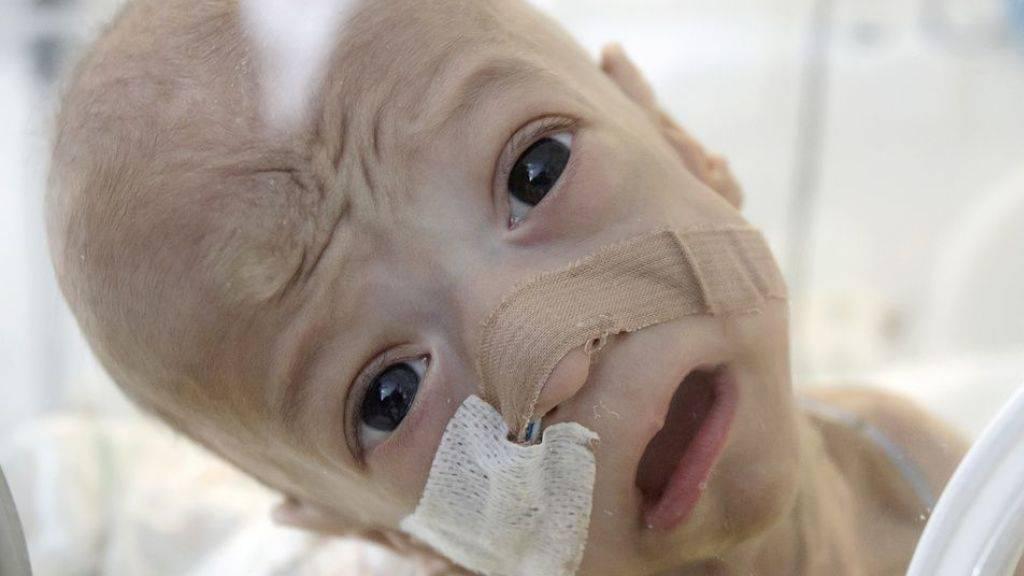 Kindersterblichkeit EU-weit fast halbiert