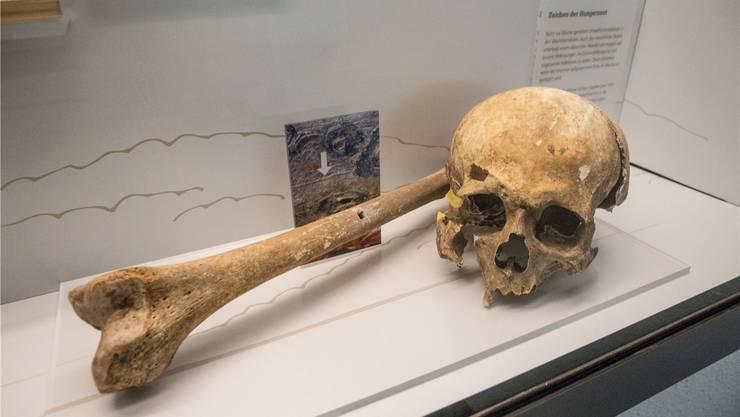 Sogar in Knochenstrukturen lässt sich die Hungerkrise von 1816 erkennen.
