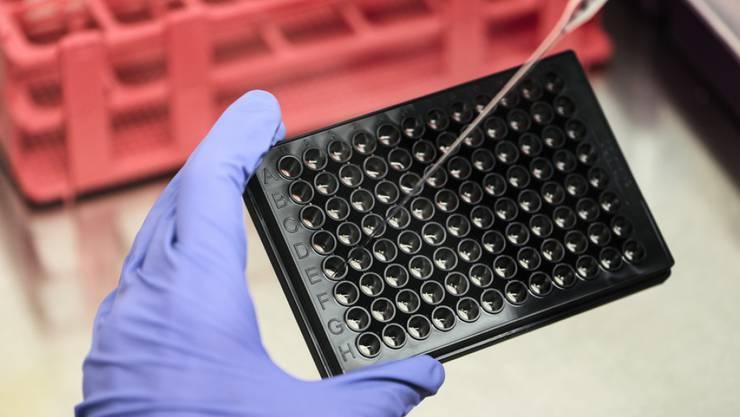 Neue Forschungskooperation zwischen Tillotts Pharma AG und dem Biotechnologieunternehmen Labgenius, soll die Behandlung entzündlicher Darmkrankheiten weiterentwickeln. (Symbolbild)