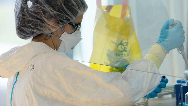 Eine Wissenschaftlerin forscht an der ETH Lausanne zur Turberkulose