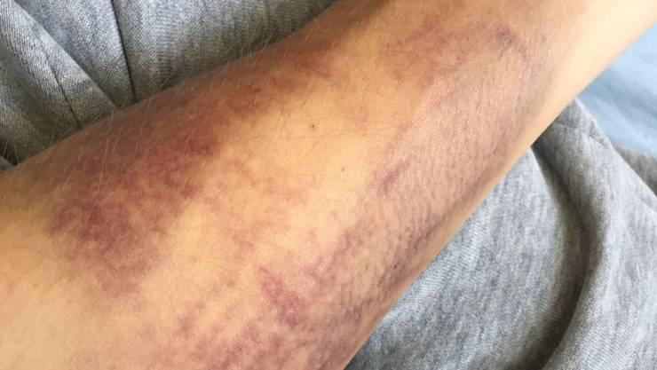 So sah Mursulas Unterarm nach der Blutentnahmen aus.