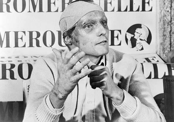 Niki Lauda an der Pressekonferenz vor dem GP von Italien – 42 Tage nach seinem Horror-Unfall.
