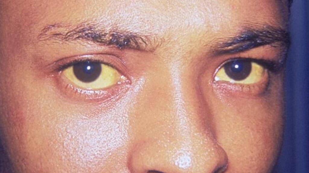 Gelbfärbung von Haut und Augen können ein Symptom von Hepatitis sein. Weltweit sind 354 Millionen Menschen mit Hepatitis infiziert. Über eine Million sterben jedes Jahr daran. Zum morgigen Welt-Hepatitis-Tag ruft die WHO zum vermehrten Testen auf, beispielsweise mit Selbsttests (Wikicommons).