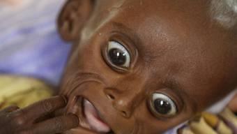Schwer von Hunger gekennzeichnet: Ein 7 Monate altes somalisches Kind wiegt nur 3,4 Kilogramm