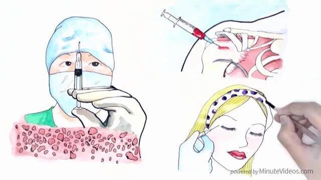 Haarausfall-Behandlung mit Eigenblut (PRP)