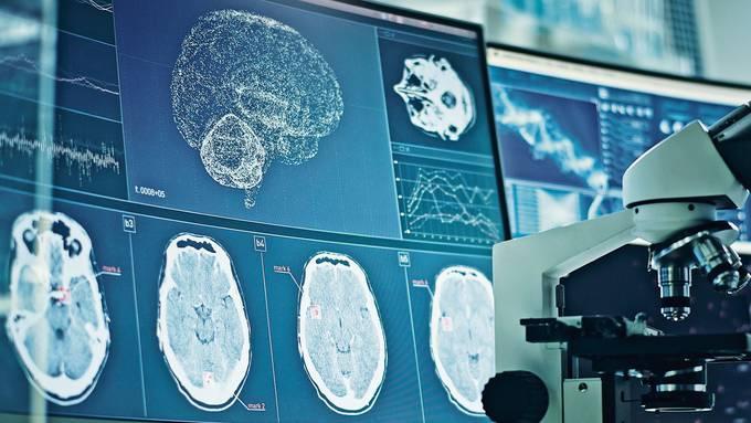 Computerscans von einem Gehirn zur Erforschung des Coronavirus: Weil das Virus Blutgefässwände befällt, erreicht es jedes Organ, auch das Gehirn.