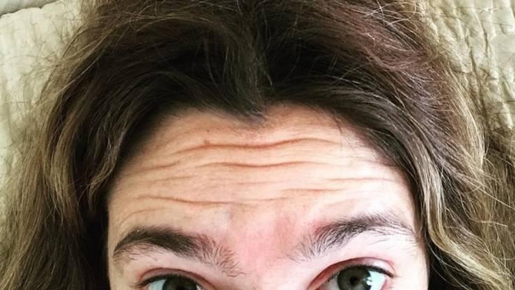 """Hätten Sie sie erkannt? Es ist der Filmstar Drew Barrymore nach einer längeren Drehpause. Für die Netflix-Horror-Komödie """"Santa Clarita Diet"""" will sie aber demnächst Haaransatz und Brauen wieder aufhübschen lassen. (Twitter)"""