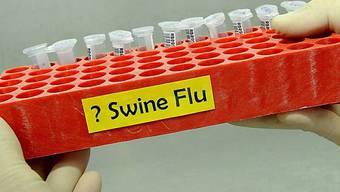 Schweinegrippe-Tests
