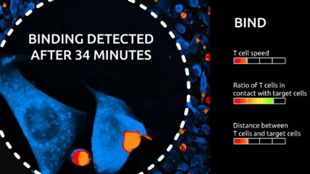 Der neuartige Test Live T Cell Assay lässt Wissenschaftler live teilhaben an der Interaktion zwischen Immun- und Krebszellen. Hier wurde der Moment erfasst, in dem eine Immunzelle an die Krebszelle andockt (Screenshot Nanolive)