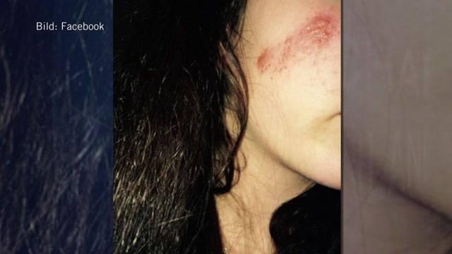 2 Jugendliche greifen eine junge Frau in Boll an