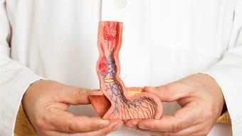 Es gibt verschiedene Tumore, welche die Speiseröhre befallen können: gutartige, bösartige, die gut behandelt werden können, und aggressive. Für alle gilt: Je früher ein Tumor diagnostiziert wird, desto grösser sind die Heilungschancen. istockphoto