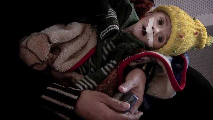 132 Millionen Menschen werden 2019 von internationaler Hilfe abhängig sein: Das verhungernde viermonatige Baby Gawad Awad in Aden, Jemen.