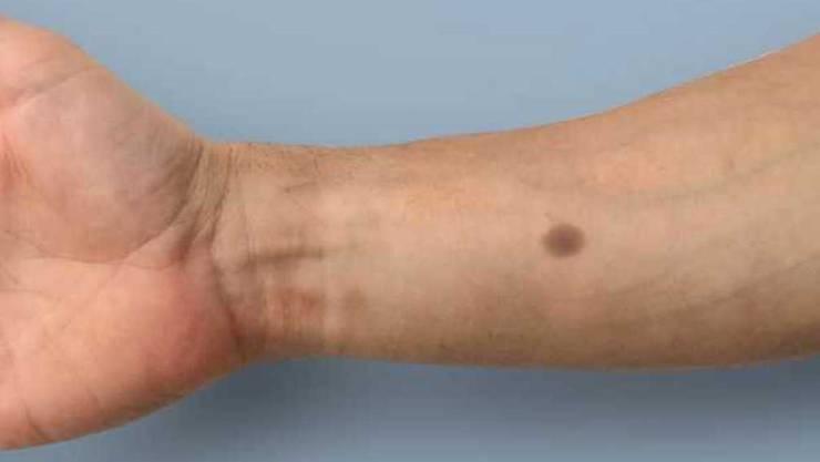 Der Leberfleck bildet sich über dem Implantat, wenn der Kalziumpegel im Blut über längere Zeit einen gewissen Schwellenwert übersteigt. Dies könnte als Früherkennung von Tumoren dienen. (Bildmontage)