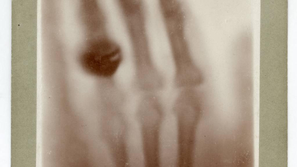 Die Hand von Anna Bertha Röntgen in einer Röntgen-Aufnahme vom 22. Dezember 1895: Das Bild zeigt ihre Handknochen mit dem Fingerring, den sie damals trug.